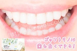ゴッソトリノホワイトニング歯を白くする効果