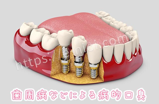 歯周病で浮いてしまっている歯と削れた歯茎の模型